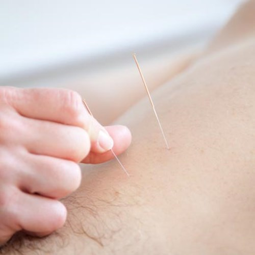 Acupuncture | Physio Flow Yoga